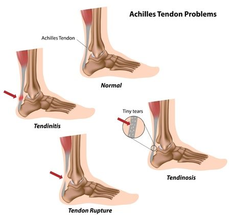 11347639 - achilles tendon problems